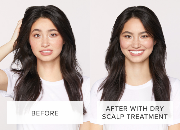 Before and After with Dry Scalp Treatment
