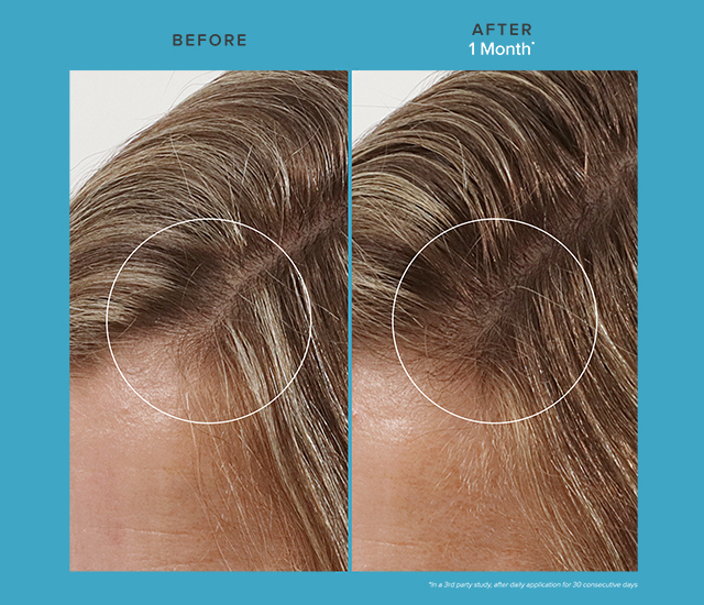 Revitalizing Treatment Before and After images